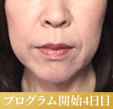 肌再生パーソナルプログラム